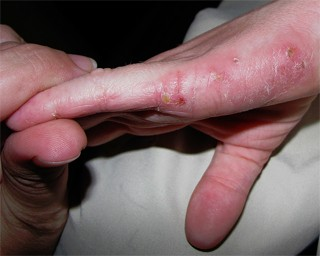 eczema skin disease treatment