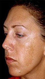 Melasma - Beauty Secrets - Castanet.net