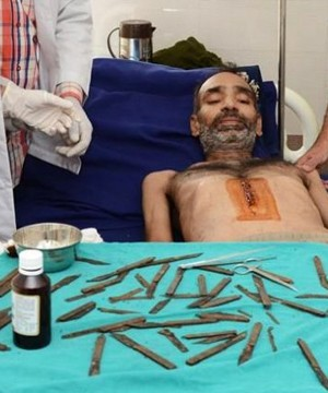 Doctors in northern India have surgically removed 40 knives from the stomach of a man who had swallowed them over the past two months.