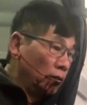 The passenger who was dragged off a flight after refusing to give up his seat settled with United for an undisclosed sum.